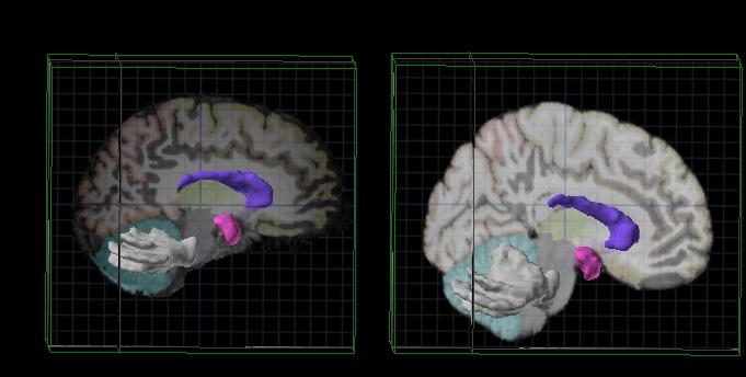 Allen_Brain_Atlas.jpg