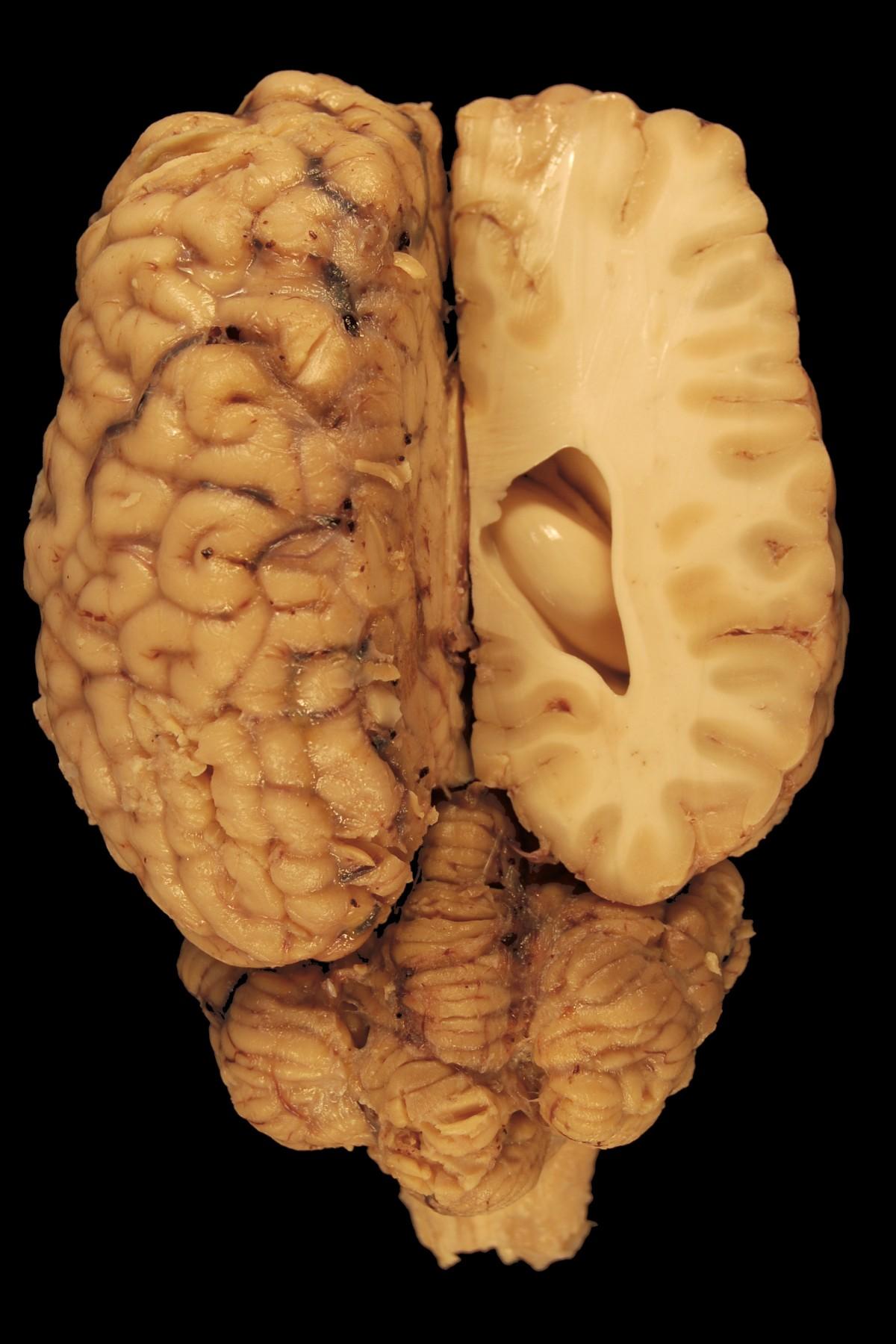 brain_anatomy_eyes_paerparat_horse_biology_dorsal_body-1126352.jpg